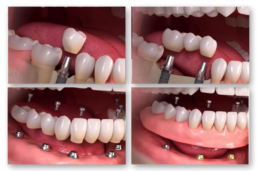 インプラント | 小林市の歯医者...